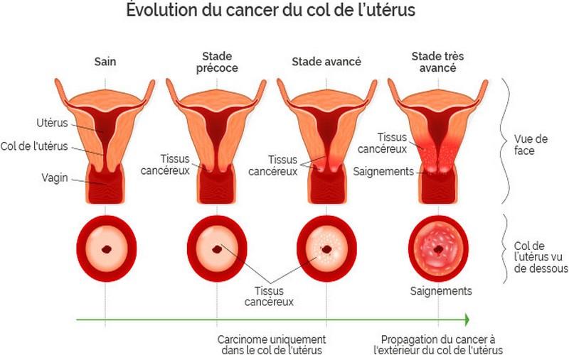 papillomavirus veut dire cancer